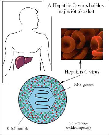 HepatitiszC
